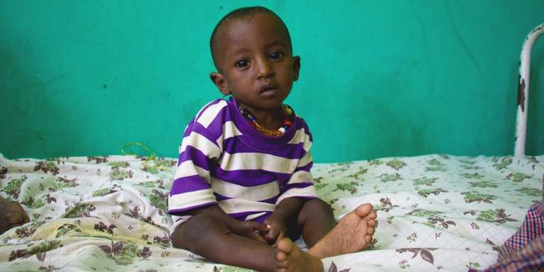 This is two-year-old boy is being treated for severe acute malnutrition in Ethiopia. He started getting sick two months back, but his health is getting worse. Photo Credit: Stuart J. Sia/Save the Children 2016.
