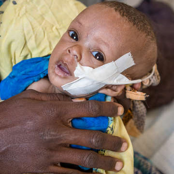 A 3-month-old child – cradled in her mother's hands – receives treatment for severe pneumonia, malnutrition and dehydration at a Save the Children-supported hospital in Kenya. Photo credit: Jonathan Hyams/Save the Children, July 2017.