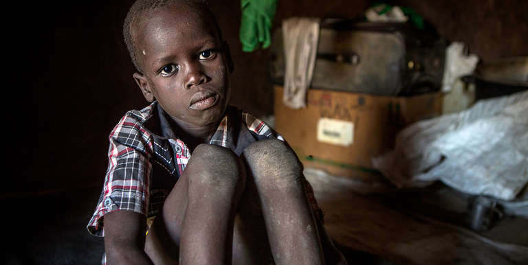 Deng, 7, was separated from his mother during violence in South Sudan. Photo credit: Jonathan Hyams/Save the Children, April 2017.