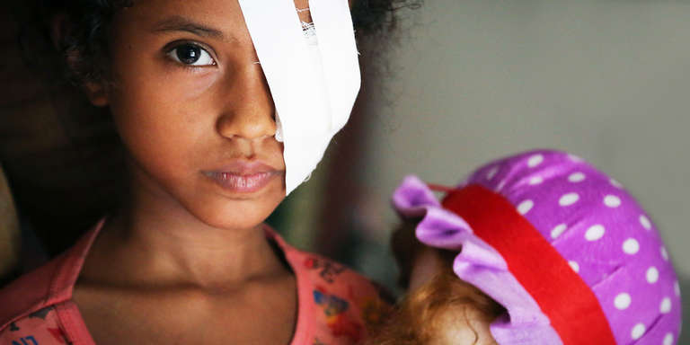 Eight-year-old Razan*s eye was seriously injured when she was hit by shrapnel during an airstrike in Hodeidah. Credit: Mohammed Awadh / Save the Children, July 2018