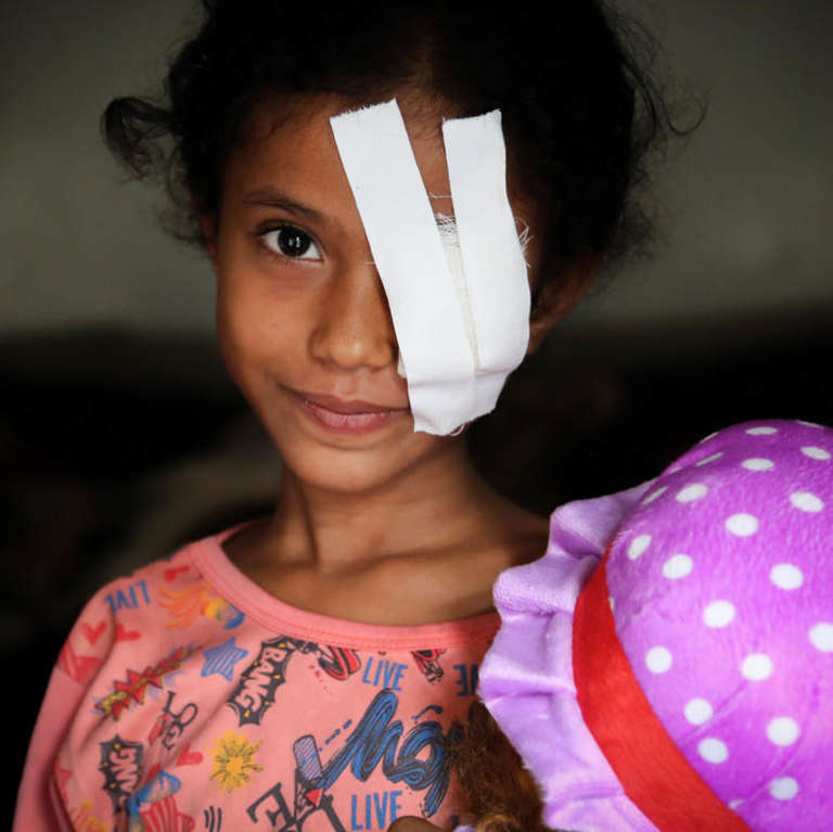 Razan* was seriously injured in an airstrike when fleeing violence in Hodeidah, Yemen. Photo credit: Mohammed Awadh / Save the Children 2018.