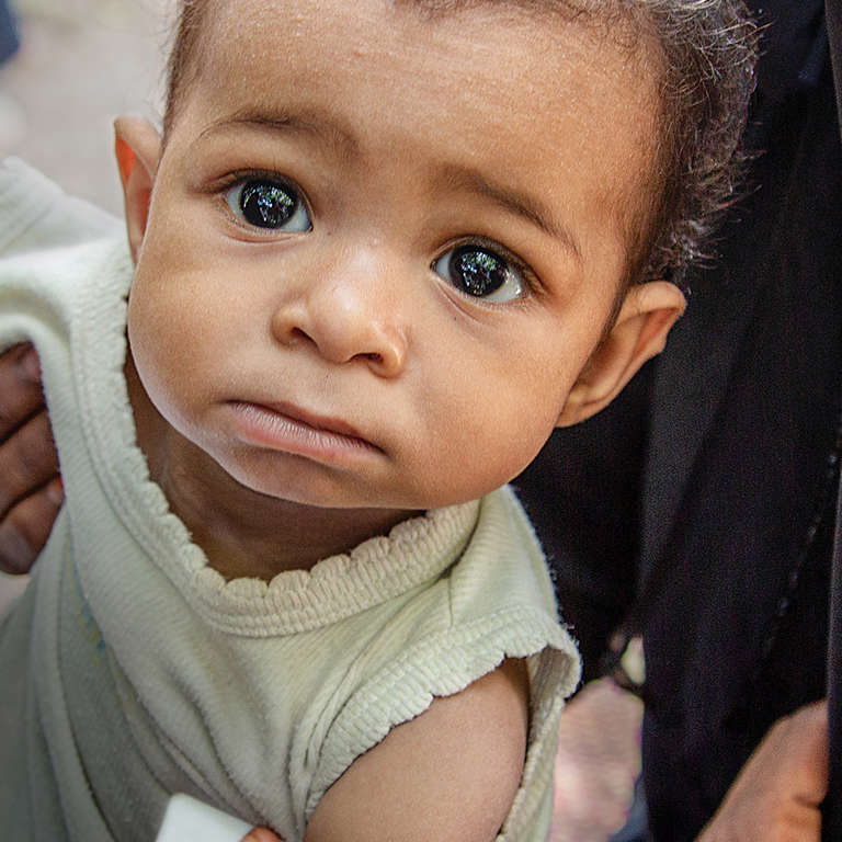 Qadir*, 10 months, at Save the Children's Outpatient Therapeutic Programme (OTP), in a camp for Internally Displaced People (IDP), Lahj district, Yemen, where he receives treatment for Severe Acute Malnutrition. Photo credit: Jonathan Hyams / Save the Children 2018.