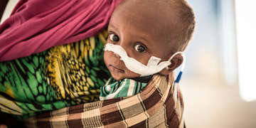 Somaliland: Ali*, 22 months, and his mother Rahma* in the stabilization centre in the Borama Hospital in Borama, Somaliland