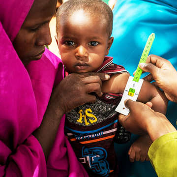 A health worker measures a baby's arm using a MUAC (mid-upper arm circumference) armband at the Adado hospital, in Somalia. The armband helps health workers know if a child is suffering from malnutrition. The head of the hospital acknowledged that the work carried out Photo credit: Mustafa Saeed / Save the Children, July 2017.