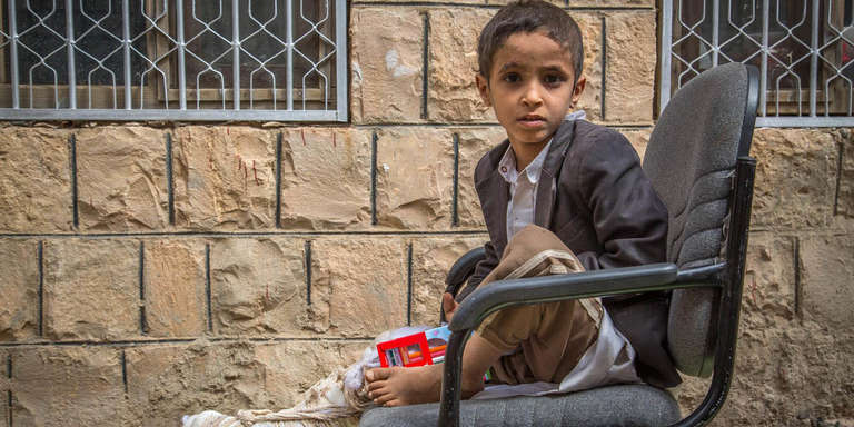 Ismail, pictured here in September 2018 just one month after his school bus was attacked. In addition to a broken foot, Ismail sustained severe injuries from flying shrapnel. Photo credit: Mohammed Awadh / Save the Children, Sept 2018.
