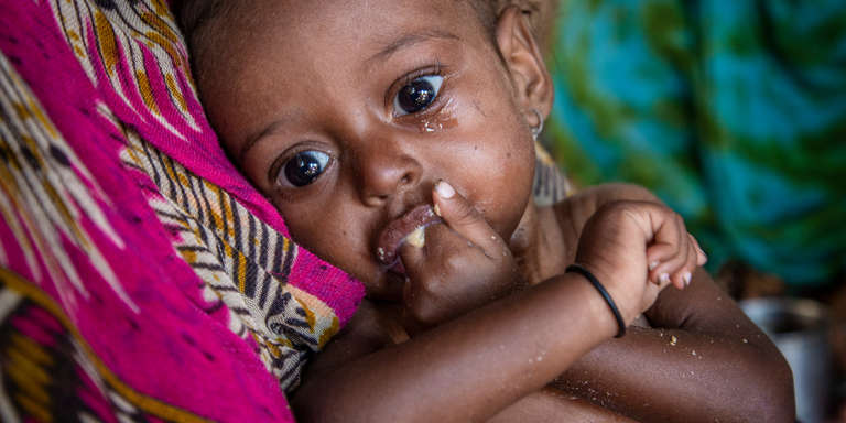 An 11-month old baby girl suffering from severe acute malnutrition eats a nutritious peanut paste given by a Save the Children health worker in a camp for Internally Displaced People (IDP) in Lahj district, Yemen. Photo credit: Jonathan Hyams / Save the Children, Nov 2018.