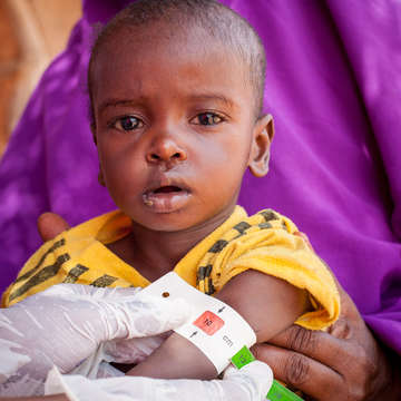 A 10-month-old baby boy named Mohamed* holds steady on his mother's lap while he is measured with a MUAC band at a Mobile Health Unit in Somaliland. The baby was suffering from measles and diarrhea when he arrived at a Save the Children-supported  mobile health unit. Photo credit: Mustafa Saeed / Save the Children, May 2018. *Name changed for protection.
