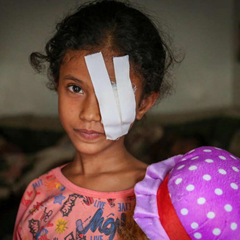 An eight-year-old girl wears a large white bandage over her left eye and holds a baby doll. The girl's eye was seriously injured when she was hit by shrapnel during an airstrike in Yemen. As the war in Yemen enters its fourth year, Save the Children is working in Yemen to  get thousands of children get the vital care they need. Photo credit: Mohammed Awadh / Save the Children, July 2017.