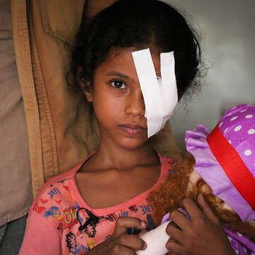 A young girl with a bandage over her eye holds a doll.