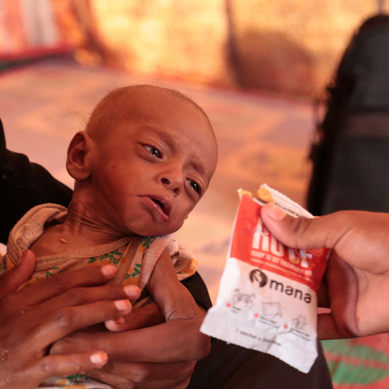 8 month baby Nabil* suffers from Severe Acute Malnutrition. He lives with his family in a tent in an IDP camp in Aden. His family moved from Alhudaidah due to the fighting. Photo credit: Save the Children, November 2018.