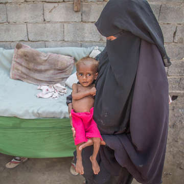 Nusair* (13 months old), with his mother Suad* in Hodeidah, Yemen. Their family was displaced from their home when conflict in their neighborhood made it unsafe to stay. Save the Children is helping Nusair* recover from malnutrition for the second time in three months.