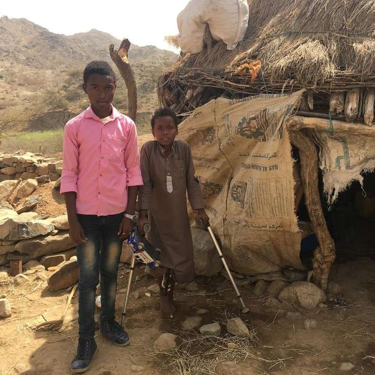 Two Yemeni boys stand outside their thatched-roof home. The younger boy has pins in his leg to help him heal from injuries he sustained during an airstrike. He stands with the help of crutches, clutching his most prized possession, a toy truck. Photo credit: Majed Nadhem/ Save the Children. 2019.