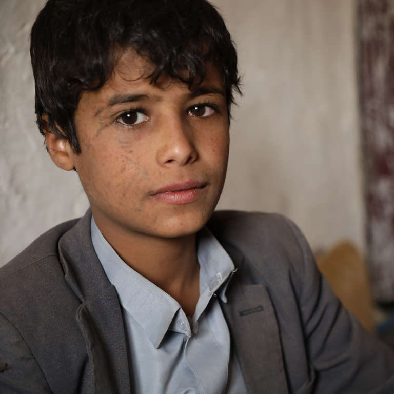 Musa*, was severely injured in his eye from an airstrike which targeted his school bus in Yemen.
